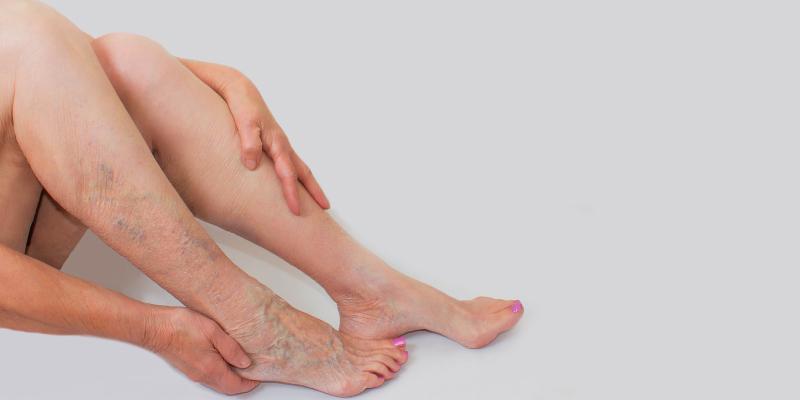 úlcera na perna